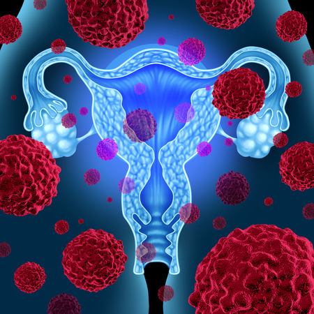 Uterus or uterine cancer medical concept as cancerous cells spreading in a female body attacking the reproductive system anatomy including ovaries and fallopian tubes as a health care symbol of cervical tumor growth treatment and risks.