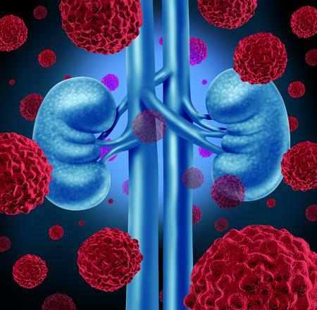 종양 성장 처리 및 위험에 대한 상징으로 비뇨기 시스템과 신장의 해부학을 공격하는 인체 cancerouse 세포로 신장 암 의료 개념.