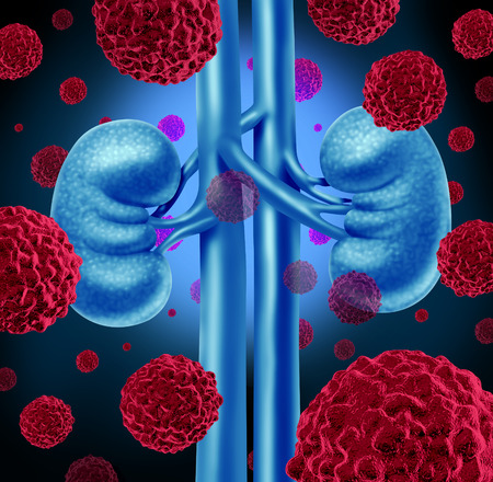 illness: Kidney cancer medical concept as cancerouse cells in a human body attacking the urinary system and renal anatomy as a symbol for tumor growth treatment and risk. Stock Photo