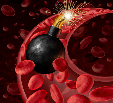 Blood circulation danger with an active inited bomb in an artery with blood cells as a concept  photo