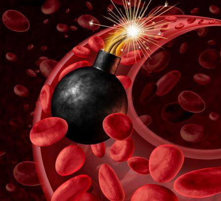 angina: Sangre peligro la circulación con una bomba inited activo en una arteria con células de la sangre como un concepto Foto de archivo