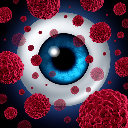 cancerous: Eye cancer concept or intraocular cancers symbol as a human eyeball with cancerous cells spreading as a health care and medical icon for ocular tumor risk resulting in vision loss and blindness.