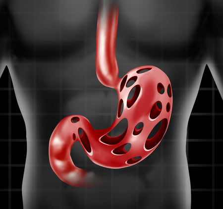 Stomach problem medical health care concept as the human digestion organ with holes as a metaphor for abdominal peptic ulcer pain or gastric acid stress.