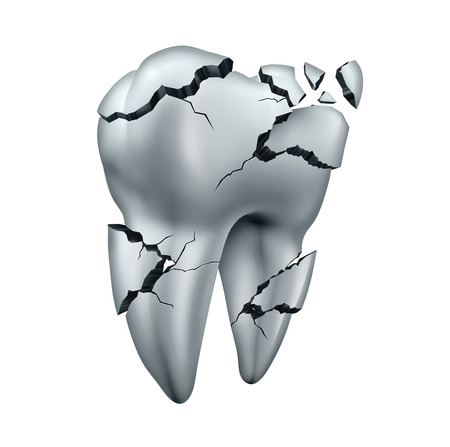 white teeth: Broken tooth dental symbol and toothache dentistry concept as a single cracked damaged molar on an isolated white background.