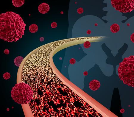 골격 엉덩이 관절에서 인간의 뼈의 내부의 다이어그램을 가까이로 뼈 암 개념 그림 스톡 콘텐츠