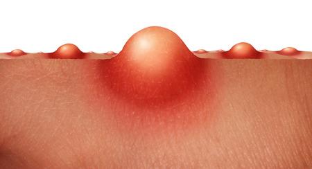 Acne huid zorgconcept als een groep van puistjes of zweren op de menselijke huid als medisch anatomie symbool voor een huidverzorging epidermis stoornis op een witte achtergrond.