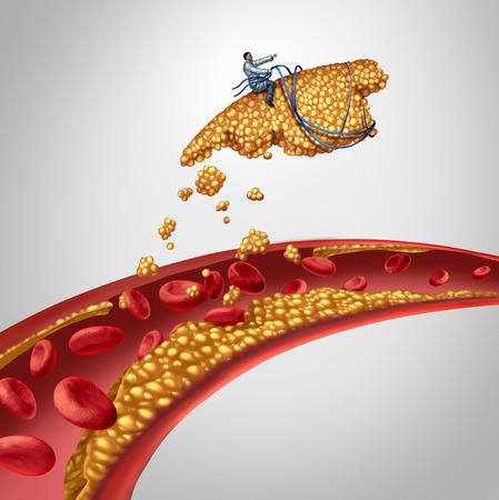 placa bacteriana: Cirugía de la placa arterial como médico limpieza de un concepto de la arteria como cirujano eliminar el colesterol acumulación en una vena obstruida humana como símbolo de apertura el tratamiento médico de la enfermedad aterosclerosis vías obstruidas para la salud la circulación sanguínea.