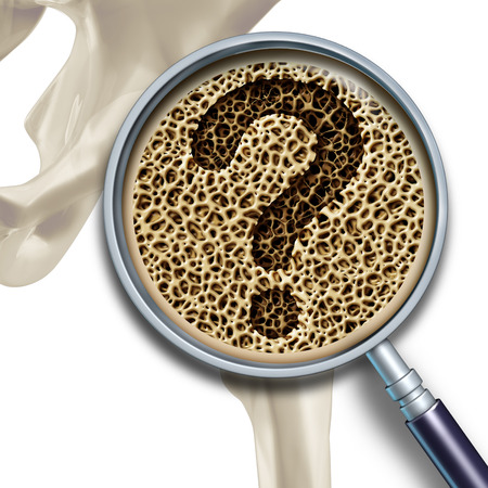 osteopathy: Bone medical health questions and osteoporosis illustration concept as a close up diagram of the inside of human skeletal hip bones with a magnification glass showing a normal healthy condition degrading to abnormal unhealthy anatomy as a question mark.