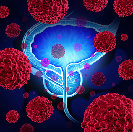 Prostate cancer danger medical concept as cancerous cells in a male body attacking the reproductive system as a symbol of human malignant tumor growth diagnosis treatment and risks.
