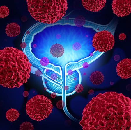 rak: Rak prostaty niebezpieczeństwo medyczne pojęcie jak komórki rakowe w męskim ciele atakujących układ rozrodczy jako symbol ludzkiego wzrostu guza złośliwego diagnostyki i leczenia ryzyka.