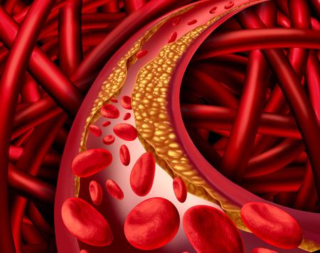 grasas saturadas: Arteria problema con arterias obstruidas y concepto m�dico enfermedad aterosclerosis con un sistema humano tridimensional cardiovascular con c�lulas sangu�neas que bloqueado por la acumulaci�n de placa de colesterol como un s�mbolo de las enfermedades vasculares.