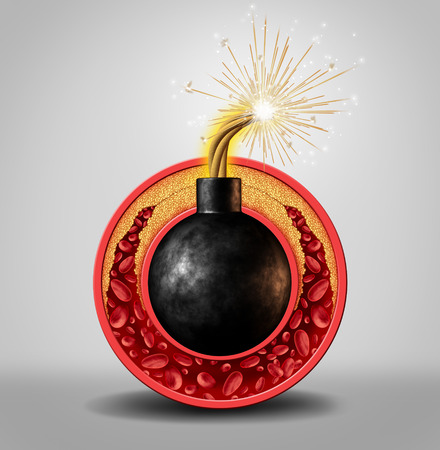 Cholesterol time bomb and coronary artery disease danger as a medical concept with an ignited bomb inside a circular vein with gradual plaque formation as clogged arteries and atherosclerosis as a metaphor for the medical risks of fat buildup.