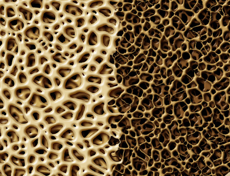 Bone with osteoperosis medical anatomy concept as a strong healthy and normal spongy tissue against unhealthy porous weak skeleton structure due to aging or illness.