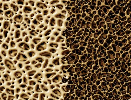 human bones: Hueso con concepto osteoperosis anatomía médica como un fuerte tejido esponjoso saludable y normal contra malsana estructura de esqueleto débil porosa debido al envejecimiento o enfermedad.