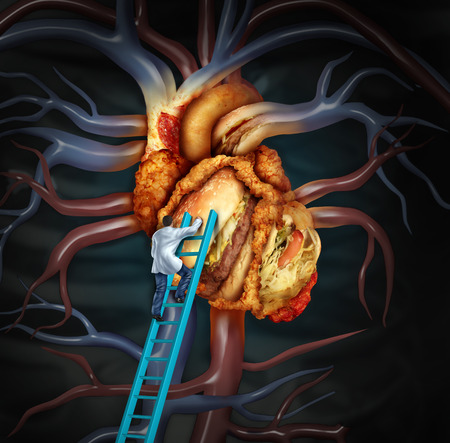 High Cholesterol treatment and medical therapy as a doctor on a ladder cleaning a problem heart made of greasy fast food or a surgeon removing fat buildup in a clogged human organ as a symbol of atherosclerosis disease health treatment.
