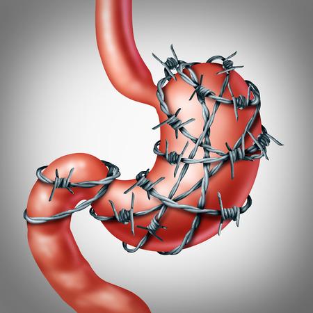 organi interni: Mal di stomaco o mal di stomaco e ulcera concetto disagio come un organo digestivo umano dolorosamente avvolti con filo spinato tagliente come una sollecitazione sanitario medico e simbolo ansia del afflizione doloroso in un organo interno addominale. Archivio Fotografico