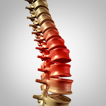 lower back pain: Spine pain and lower back disease and human backache with a three dimensional spinal body skeleton showing the vertebra and vertebral column in glowing red highlight as a medical health care concept for joint pain. Stock Photo
