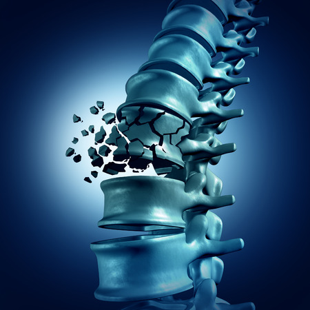 in the back: Spinal Fracture and traumatic vertebral injury medical concept as a human anatomy spinal column with a broken burst vertebra due to compression or other osteoporosis back disease.