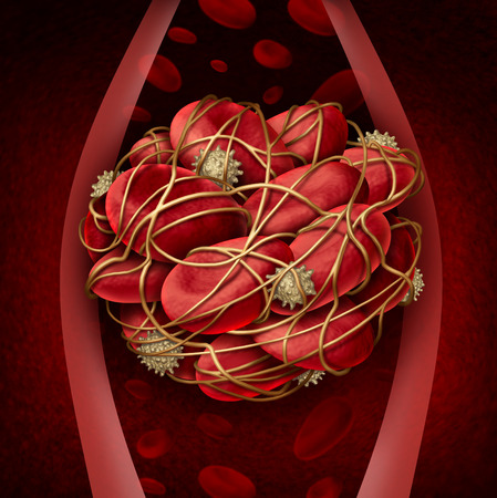 thrombus: Blood clot and thrombosis medical illustration concept as a group of human blood cells clumped together by sticky platelets and fibrin creating a blockage in an artery or vein as a health disorder symbol for circulatory system danger. Stock Photo
