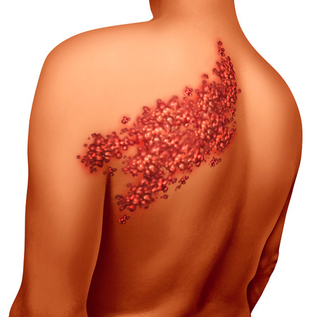 shingles: Enfermedad de herpes z�ster concepto infecci�n viral como una ilustraci�n m�dica con ampollas en la piel ronchas y llagas en una espalda humana torso como un s�mbolo de la salud para una condici�n erupci�n dolorosa. Foto de archivo