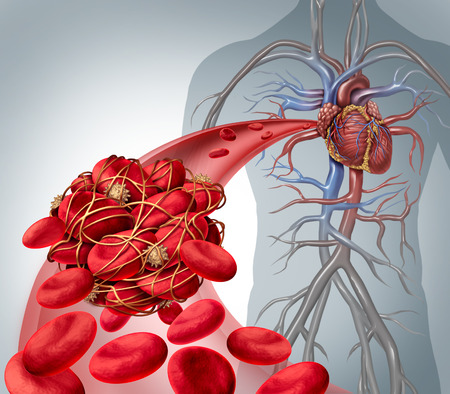 thrombus: Blood clot risk and clot or thrombosis medical illustration symbol as a group of human blood cells clumped together by sticky platelets and fibrin creating a blockage in an artery or vein leading to the heart. Stock Photo