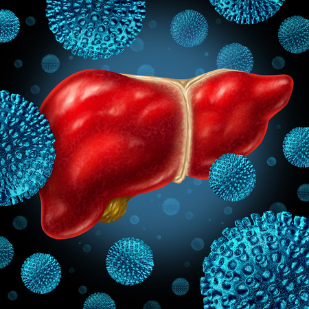 virus cell: Liver infection as a human liver infected by the hepatitis virus as a medical concept for the viral disease causing inflammation symptoms.