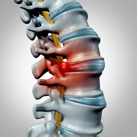 Herniated disk concept and spine pain diagnostic as a human spinal system symbol as medical health problem and anatomy symbol with the skeletal bone structure and intervertebral discs closeup. Standard-Bild