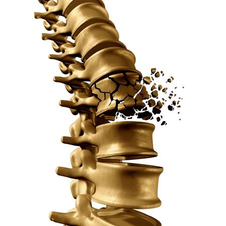 Fracture vertébrale et traumatique concept médical de blessure vertébrale comme une colonne vertébrale de l'anatomie humaine avec un éclat vertèbre brisée due à la compression ou autre ostéoporose retour maladie sur un fond blanc.