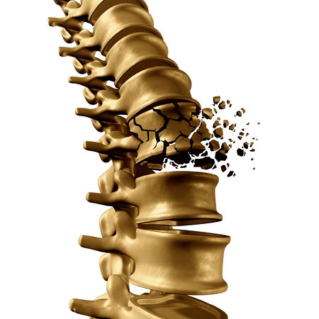 Spinal Fracture and traumatic vertebral injury medical concept as a human anatomy spinal column with a broken burst vertebra due to compression or other osteoporosis back disease on a white background. Stockfoto