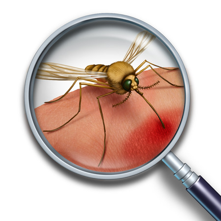 fever: Mosquito virus medical health concept close up with a magnifying glass and Zika disease risk symbol as an insect biting into human skin spreading illness and creating a public health hazard and transmitting infection. Stock Photo