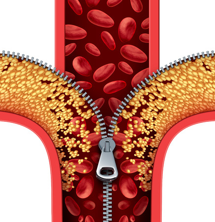 arteries: Atherosclerosis therapy cleaning arteries concept as a zipper opening up plaque buildup in a blocked artery as a symbol of medical treatment cleaning clogged veins as a metaphor for removing cholesterol.