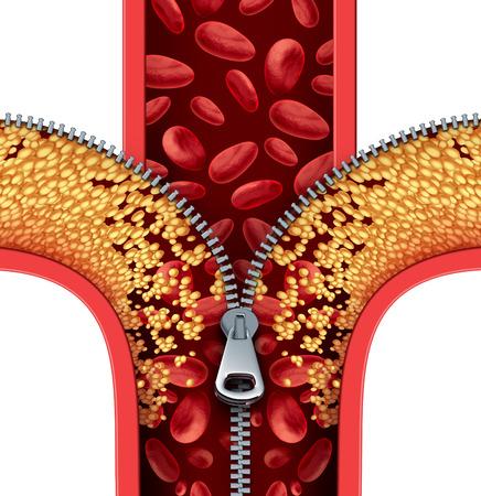 thérapie Atherosclerosis nettoyage des artères concept comme une fermeture éclair ouverture accumulation de plaque dans une artère bloquée comme un symbole de traitement médical nettoyage des veines obstruées comme une métaphore pour éliminer le cholestérol.