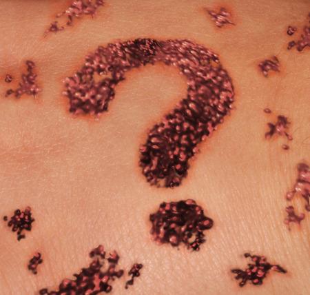 lunares rojos: lunar de la piel sospechoso como un concepto de la dermatología médica para la detección de lunares como un crecimiento rojo oscuro en la epidermis humana en forma de un signo de interrogación como symbiol para el diagnóstico incierto IOF un cáncer de melanoma benigno o maligno. Foto de archivo