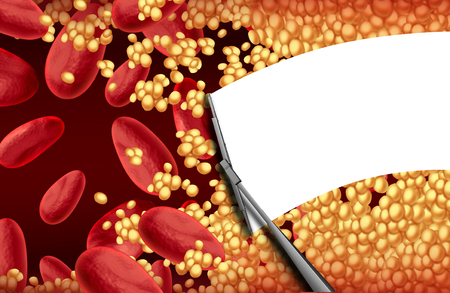 clogged: Blood cleansing a clogged artery with a wiper cleaning cholesterol plaque as an arteriosclerosis health risk therapy and cardiovascular treatment concept.