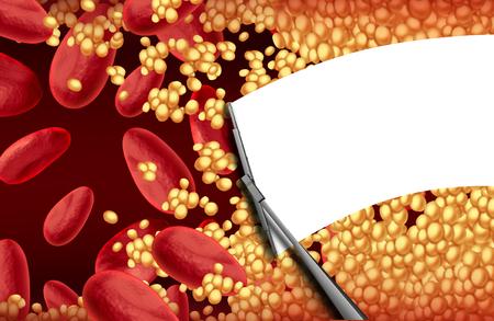 Sangue pulizia un arteria ostruita con una placca di colesterolo pulizia del tergicristallo come terapia arteriosclerosi rischio per la salute e concetto di trattamento cardiovascolare.