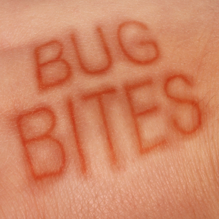 Bug bites medical concept and health care symbol for insect bite infection or skin irritation as human epidermis with text shaped with sores as for lym disease or dengue fever or zika virus and malaria.