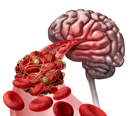 blockage: Brain blood clot medical concept as 3D illustration blood cells blocked by an artery blockage thrombus causing a blockage of blood flow to the neurology anatomy. Stock Photo