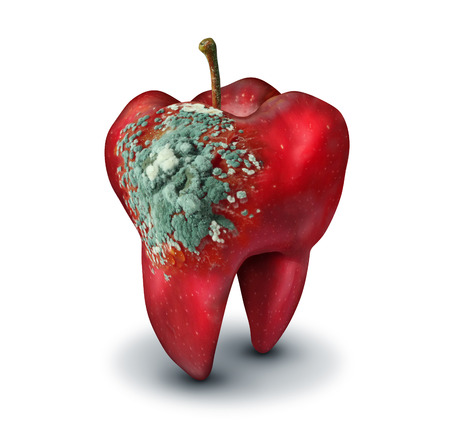 Dental medicine concept as a red apple shaped as a human molar tooth with decaying mold growing on the surface as a dentistry and oral medical health care symbol in a 3D illustration style.