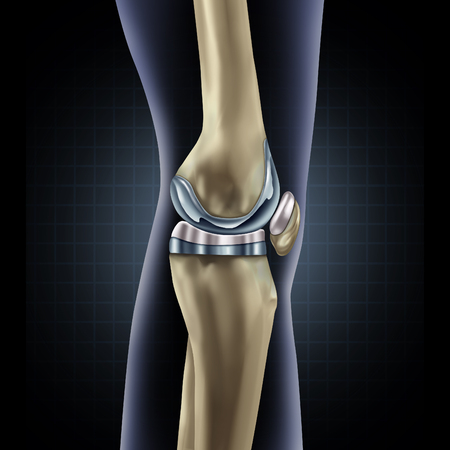 musculoskeletal: Knee replacement implant medical concept as a human leg anatomy after a prosthetic surgery as a musculoskeletal disease treatment symbol for orthopedics with 3D illustration elements.