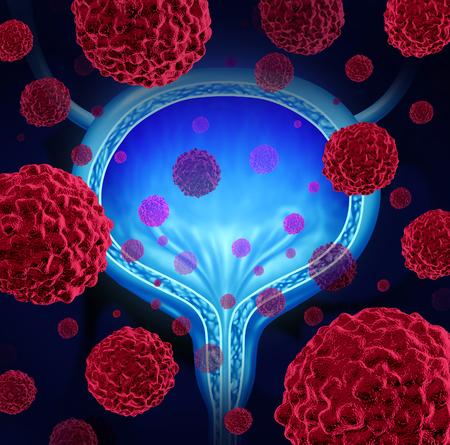 El cáncer de vejiga concepto médico como un símbolo órgano anatómico urinario con células malignas cancerosas microscópicas se extienden en el cuerpo humano como una ilustración 3D de la salud.