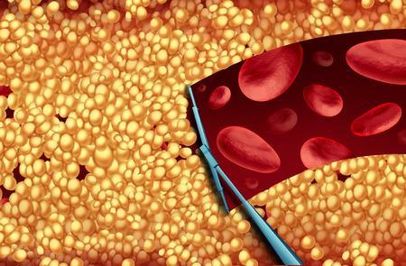 Het verwijderen van cholesterol en het schoonmaken van slagaders medische concept als een ruitenwisser het verwijderen van de vorming van tandplak in een verstopte slagader als een symbool van atherosclerose en vaatziekten behandeling in het ziekenhuis door het openen van verstopte aderen als een 3D-afbeelding. Stockfoto - 64818629