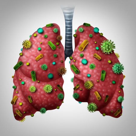 influenza: Pneumonia infection medical concept as human lungs infected by virus and bacteria as a lung disease diagnosis with 3D illustration elements.