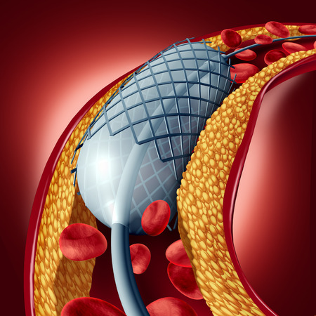 Angioplasty and stent concept as a heart disease treatment symbol with an implant in an artery that has cholesterol plaque blockage being opened for increased blood flow as a 3D illustration.