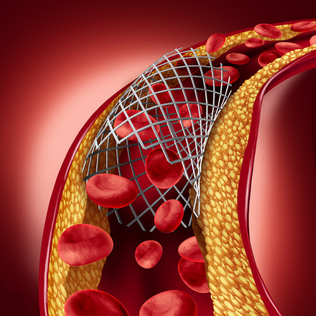 Stent implant concept as a heart disease treatment symbol with an angioplasty procedure in an artery that has cholesterol plaque blockage being opened for increased blood flow as a 3D illustration. Stock Photo