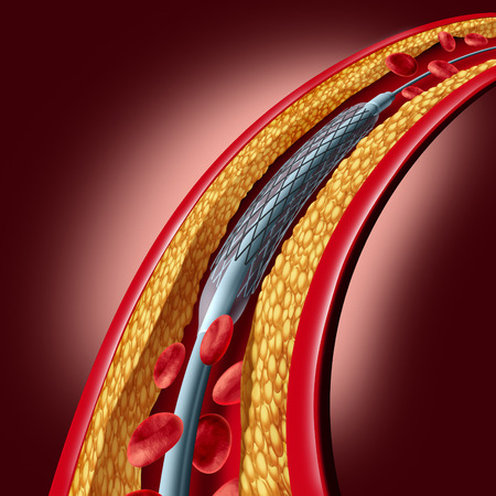 blockage: Stent coronary placement as an angioplasty medical implant concept as a heart disease treatment symbol with an implant in an artery that has cholesterol plaque blockage as a 3D illustration.