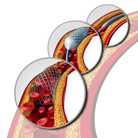 Angioplasty and stent concept as a heart disease treatment symbol diagram with the stages of an implant procedure in an artery that has cholesterol plaque blockage being opened for increased blood flow as a 3D illustration. Imagens