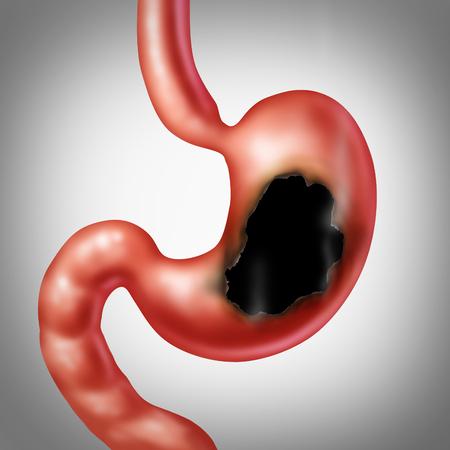 胃潰瘍医療概念と孔を有する人体腹部臓器と煙と火傷の医療イラストを 3 D イラストレーション スタイルで医療のシンボルとして消化器系の消化不