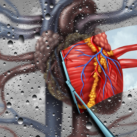 Human heart disease therapy as a cardiac health and cardiovascular medical concept with a wiper wiping clean and removing a sick blurry organ as a cure and treatment symbol for cardiologist or surgeon with 3D illustration elements.