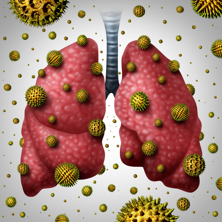 respiratory infection: Lung allergy medical concept as human lungs with airborne pollen grains infecting the breathing organ as an asthma trigger or allergic reaction symbol with 3D illustration elements. Stock Photo