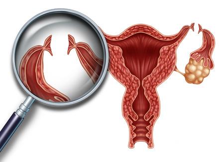 Afbinden van de eileiders reproductie medische procedure voor de sterilisatie van de vrouw als een baarmoeder met insnijdingen aan de eileiders om het ei te blokkeren van wordt bevrucht als vruchtbaarheid en gynaecologie geneeskunde concept met 3D illustratie elementen. Stockfoto